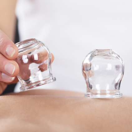 Bodywork Cupping AcuPressure Trigger Point Therapy Montreal West Island Quebec